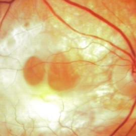 Proposta retinógrafo